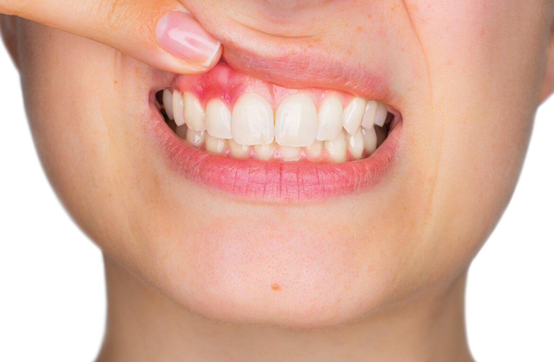 Gengiviti e parodontiti