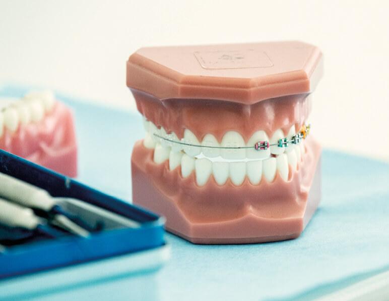 Modello Ortodontico